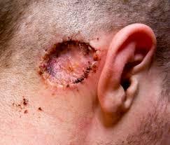 cancer de piel2